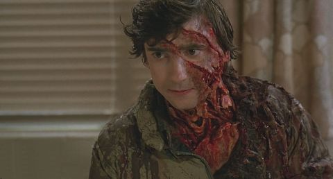 An American Werewolf in London #2